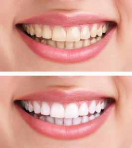 Teeth Whitening - Dental Care - Advanced Dental P.C. - Niagara Falls, NY